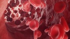 Hemofilia - królewska choroba